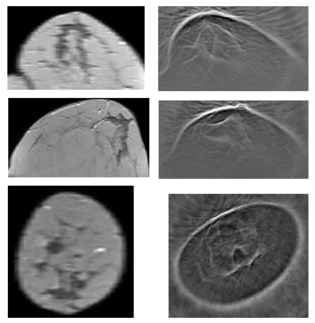 Kann frühzeitiger Ultraschall aus